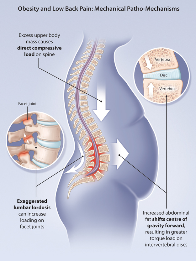 How Losing Weight Can Help Reduce Back Pain Excel Chiropractic
